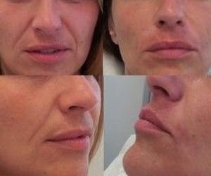 Cuidados para tu piel: Centro Médico Bellón