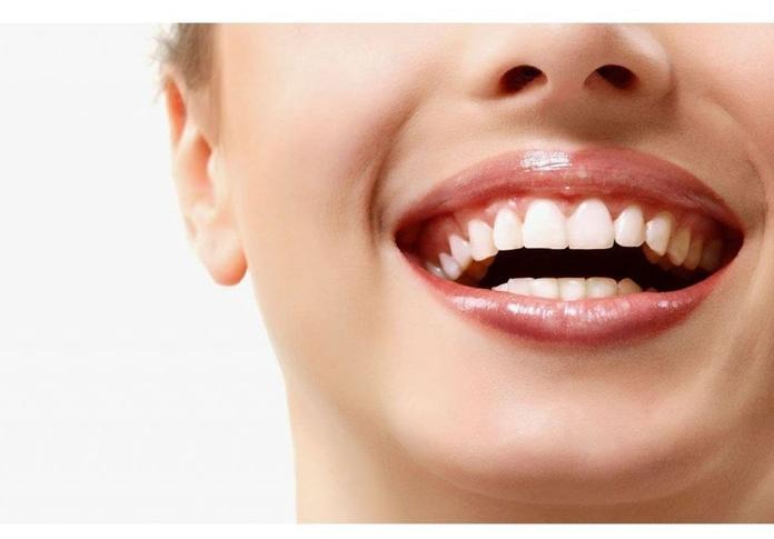 Blanqueamiento dental en Santutxu