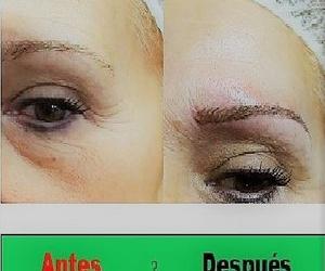 Micropigmentación, Antes y Después