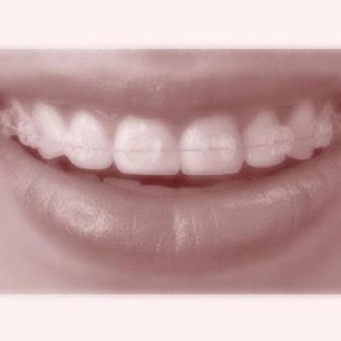 Los beneficios de tener una ortodoncia invisible