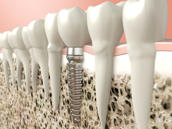 Implantes: Tratamientos de Dental Ayuso