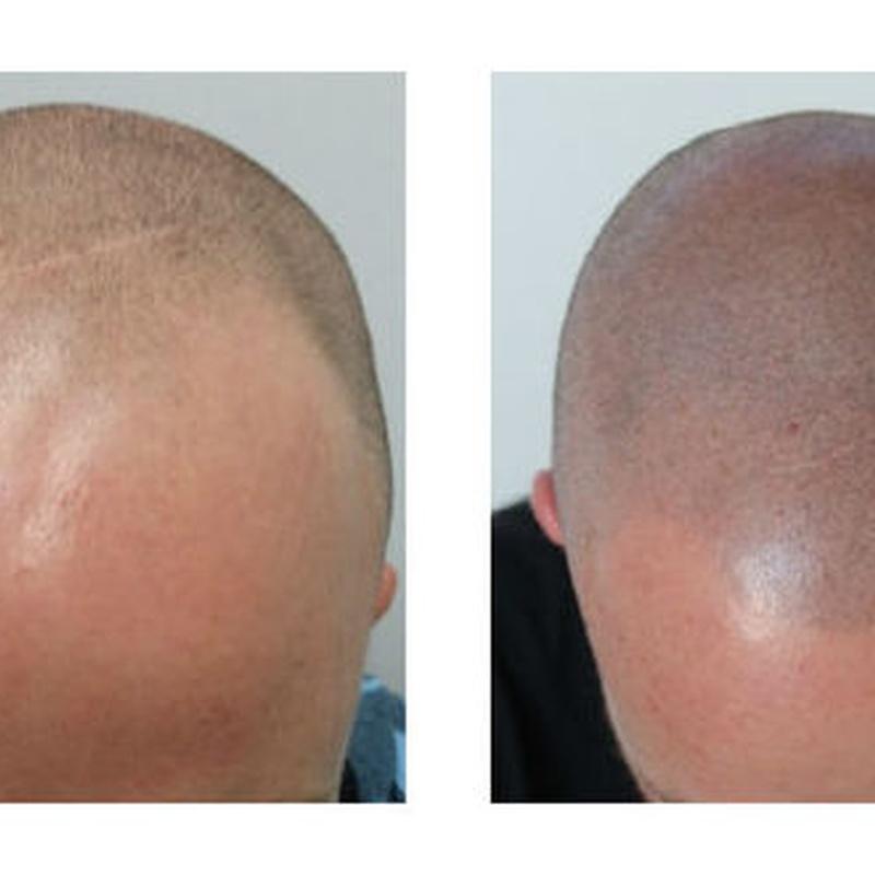 Curso de Tricopigmentación o micropigmentación capilar on line: Servicios de Beauty Channel