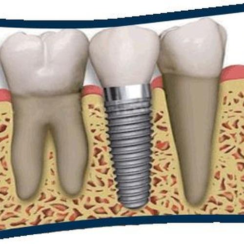 Dentistas en Bueu | Insadent - Centro Odontológico