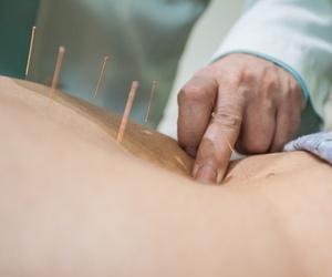 Centros de acupuntura en Granada