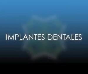 implantes dentales en hortaleza,canillas.