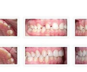 Ortodoncia y Cirugia: Tratamientos y Aparatos de Dra. Amaia Goena
