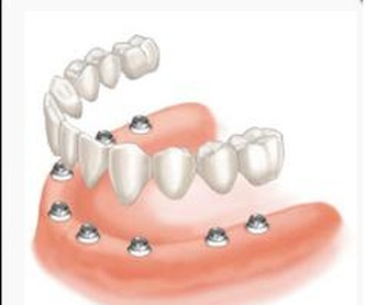 Implante Dental: Servicios de Clínica Dental Safident