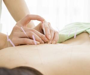 Todos los productos y servicios de Especialistas en tratamientos con acupuntura: Diezhandino Acupuntura