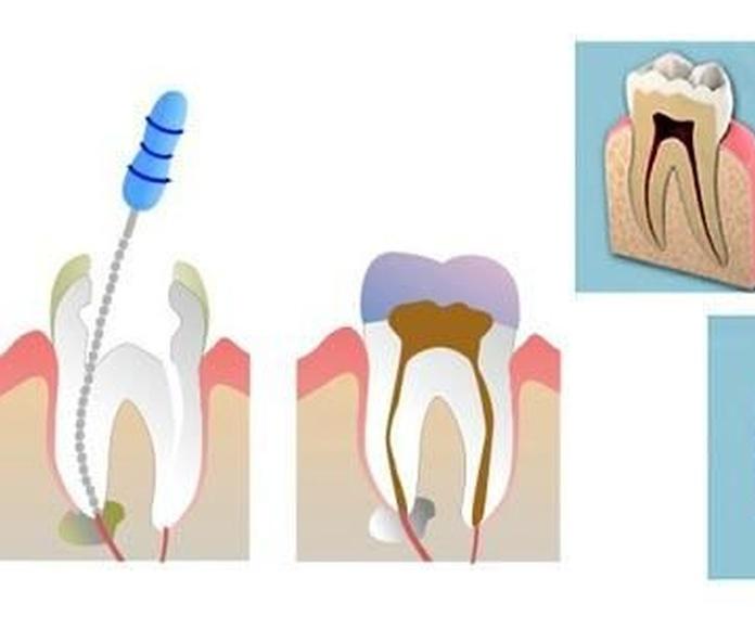 Endodoncia: Tratamientos de Clínica Dental Beyer