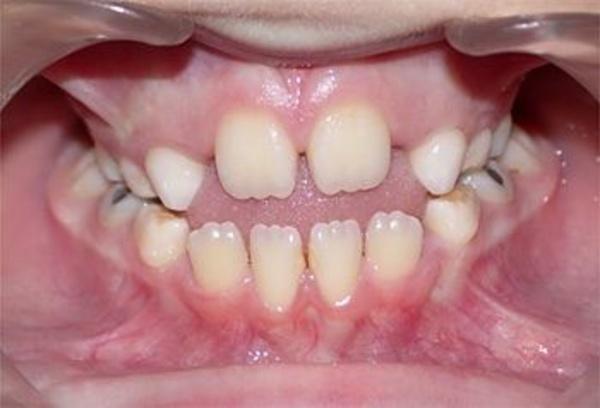 Interposición de la lengua durante la deglución