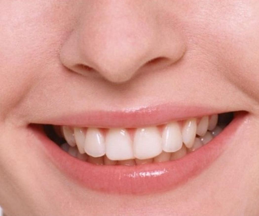 Tengo manchas blancas en los dientes, ¿qué hago?