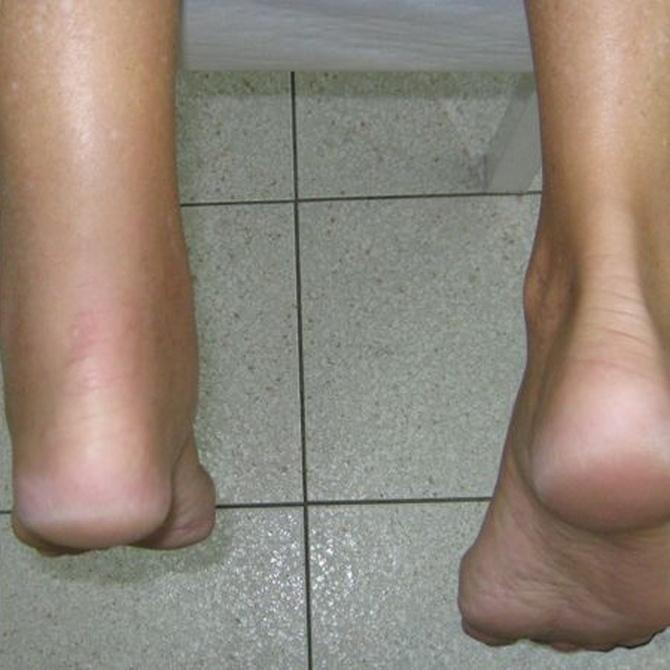 Principales causas de las tendinitis