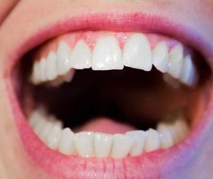 Clasificación de blanqueamientos dentales