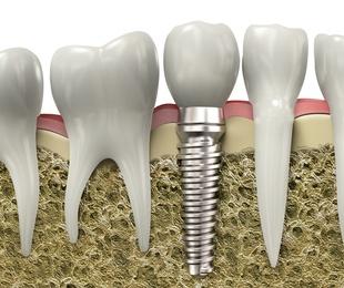 Cirugía oral e implantología