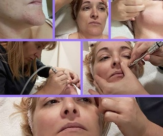 Dermapen: Tratamientos de Beauty Room