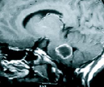 Tumores malignos : Especialidades y publicaciones de Doctor Villarejo