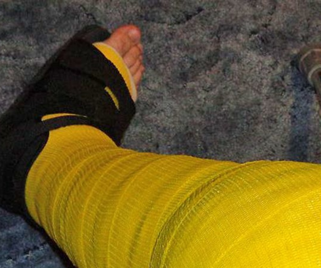 ¿Para qué sirve un Walker ortopédico?