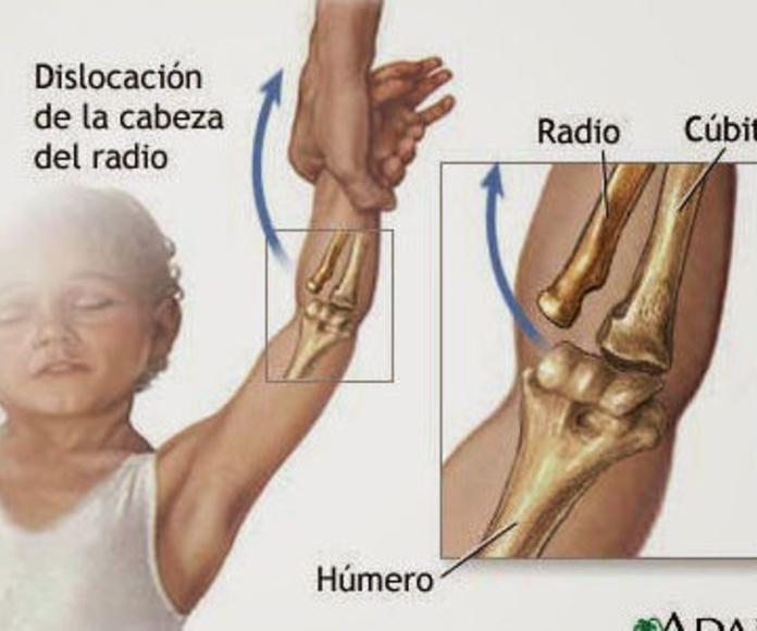 Pronación dolorosa: SECCIONES Y ARTÍCULOS de Centro Pediátrico ARCC Vilassar de mar