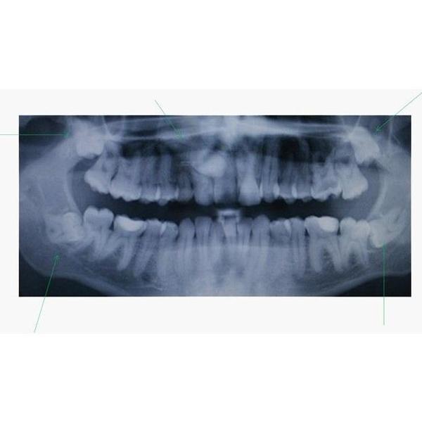Cirugía oral y maxilofacial: Especialidades  de Clínica Médico Dental Albelu