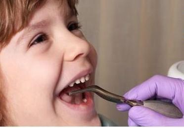 Ortodoncia en el niño