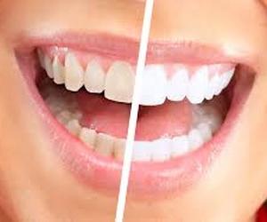 dentistas en peralta