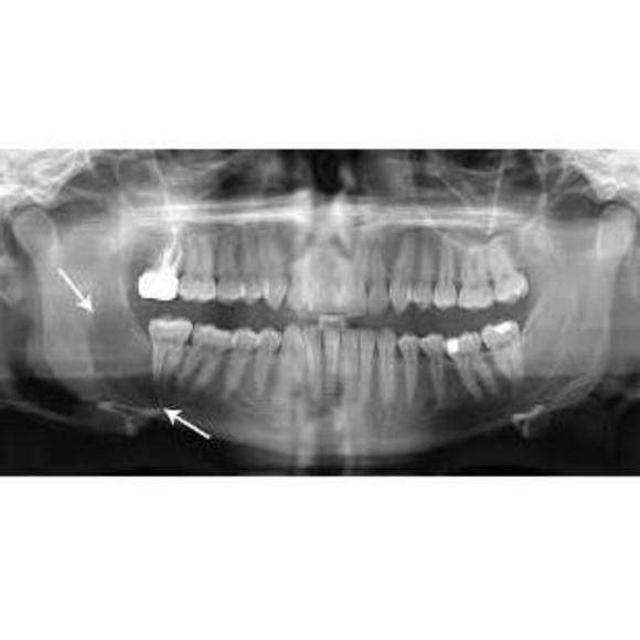 Cirugía dental: Tratamientos dentales de Clínica Dental Flores