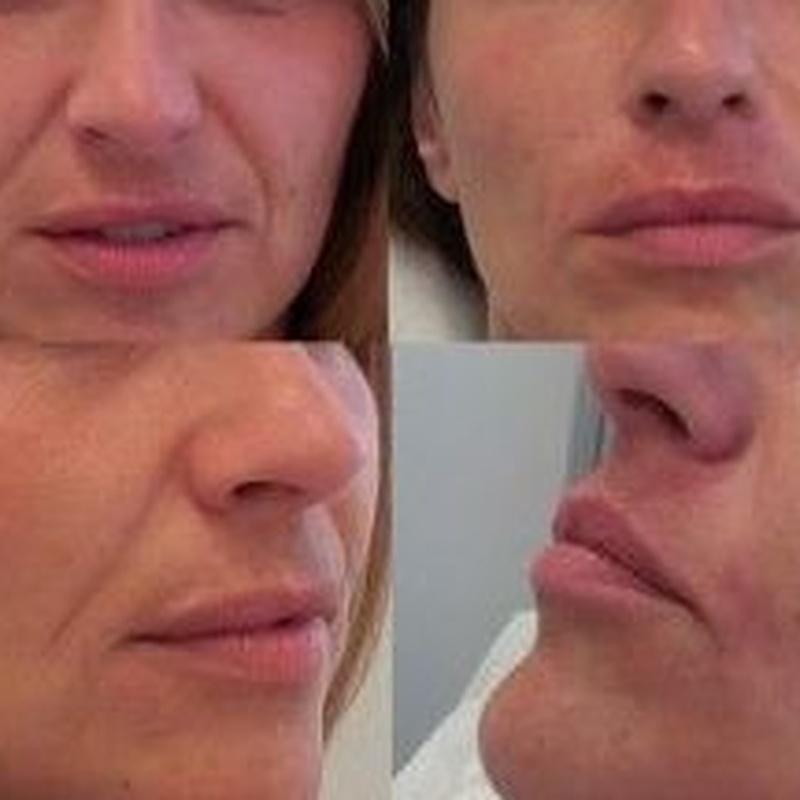 Relleno facial