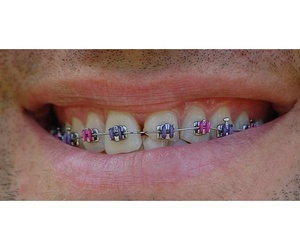 Todos los productos y servicios de Dentistas: Clínica Dental Sanclemente