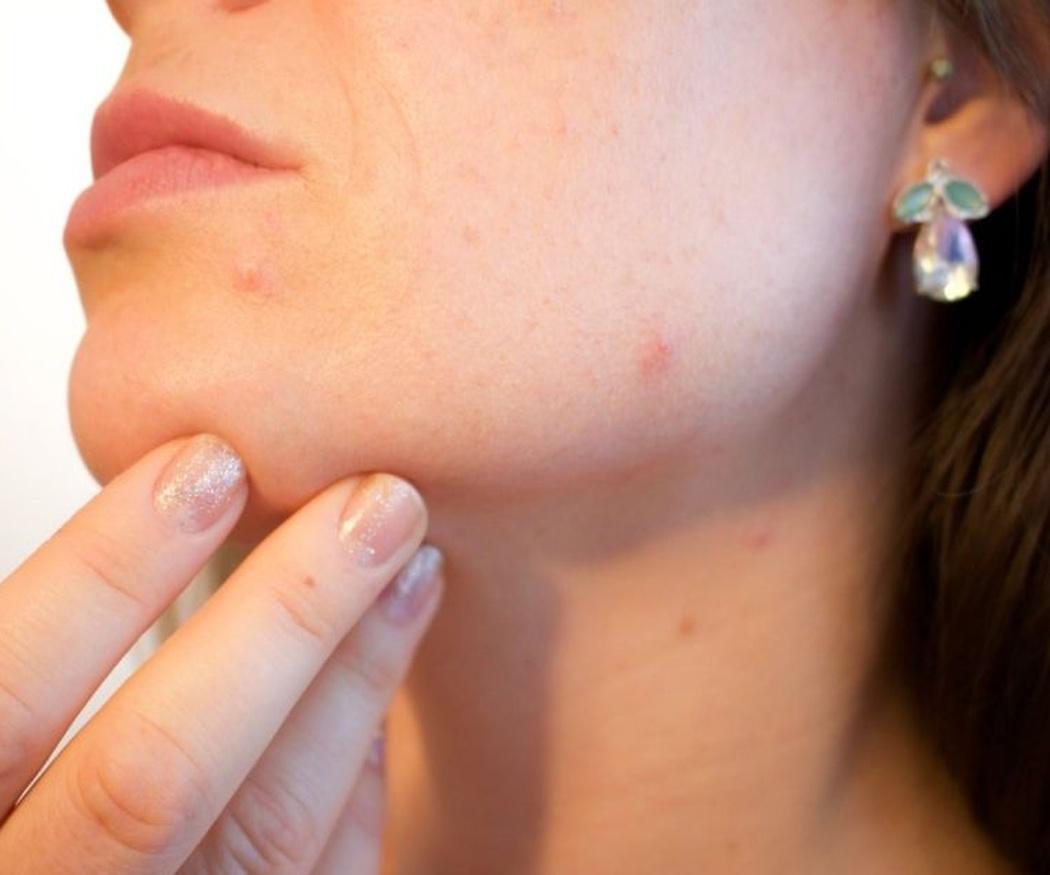 Tipos de manchas de la piel