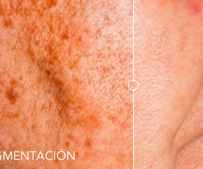 Fotorrejuvenecimiento y eliminación de manchas de la piel