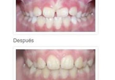 Tratamientos Ortodoncia niños