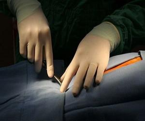 Interrupción del embarazo: quirúrgico y farmacológico