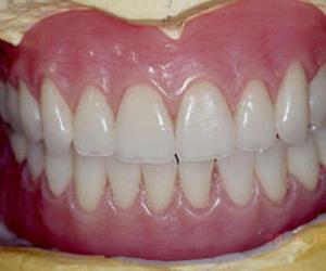 Todos los productos y servicios de Clínicas dentales: Clínica Dental Dra. Belkys Hernández Cabrera