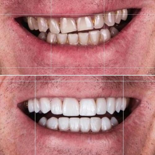 Dentista y Estética dental en La Elipa en Madrid | Clínica  Dental Ulident