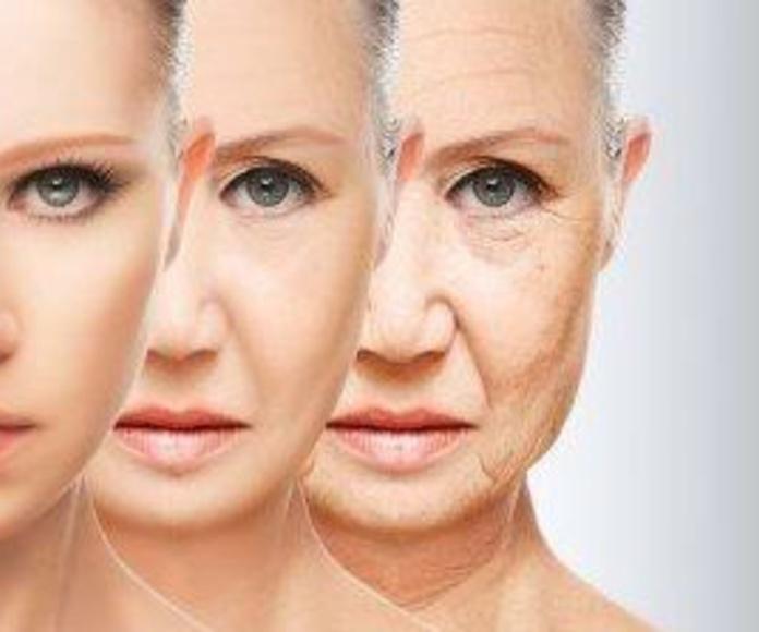 HILOS TENSORES: Tratamientos de Centro de belleza y medicina estética Lucy Lara