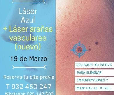 Laser azul y laser arañas