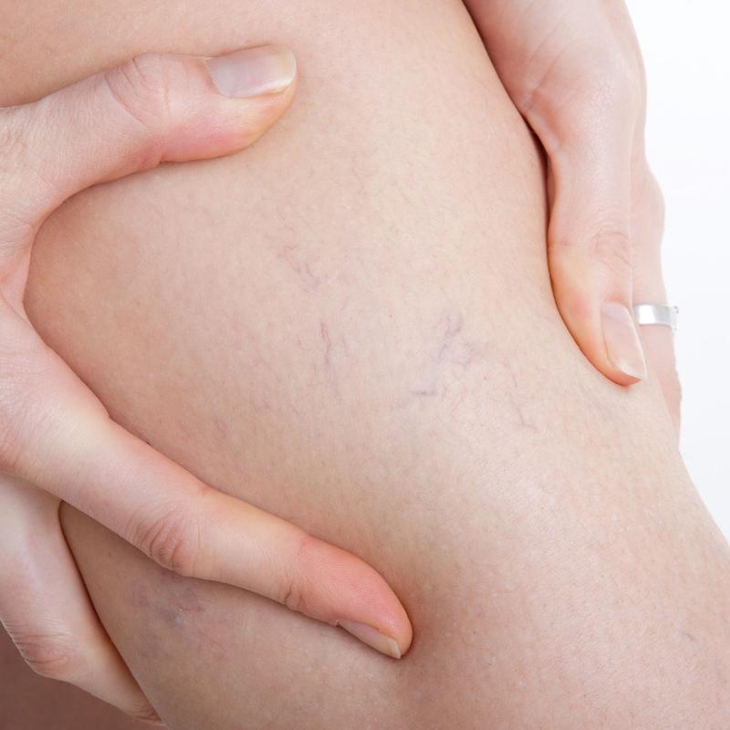 Tratamiento Varices con micro espuma: Tratamientos de estética de Clínica Estética Loveliness