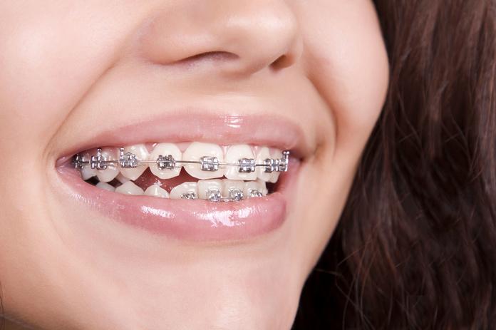 Ortodoncia: Tratamientos de Dental Saja - Clínica Dental Dra. Sonia Fernández