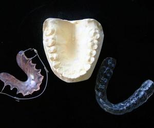 Tipos de ortodoncia más habituales hoy en día