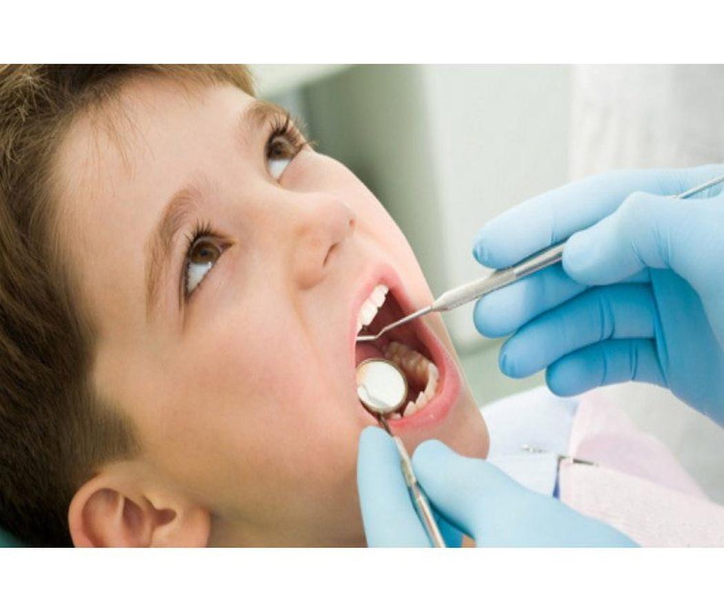 Procedimientos para solucionar la caries infantil: pulpectomía y pulpotomía