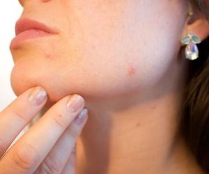 Los tratamientos faciales más demandados