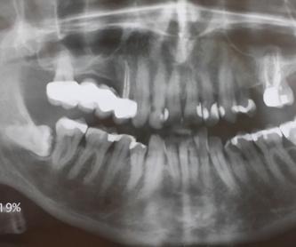 CORONAS DE ZIRCONIO: Tratamientos de Clínica Dental Ángel Artiz