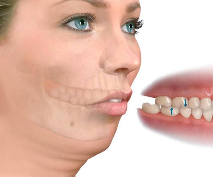Ortodoncia para Cirugía Ortognática: TRATAMIENTOS de C.E.O. Dras. Travesí