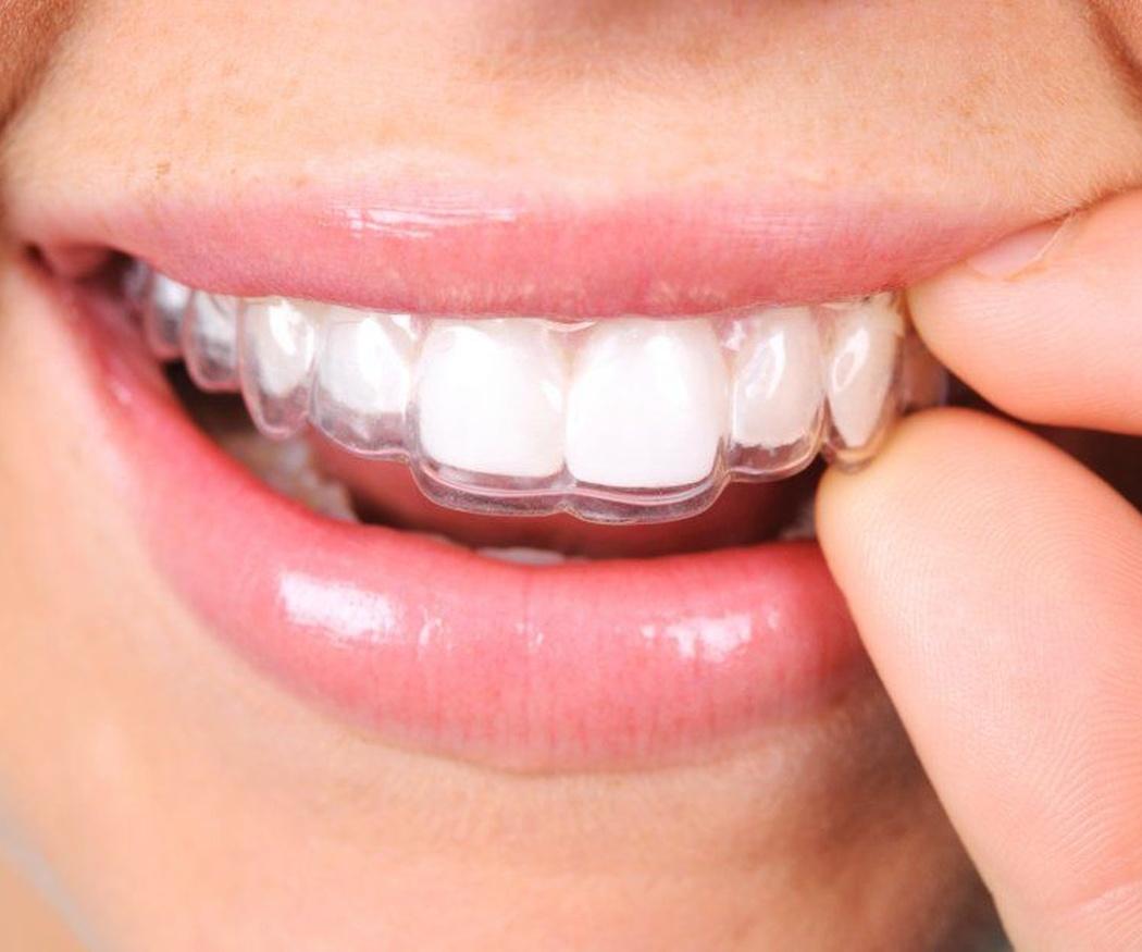 Mejora tu sonrisa sin que nadie lo note con Invisalign