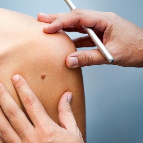 Médico que atiende enfermedades de la piel en Madrid