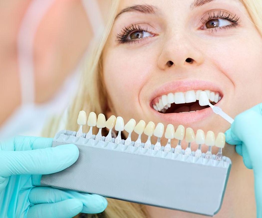 Mejora la imagen de tus dientes con unas carillas (II)