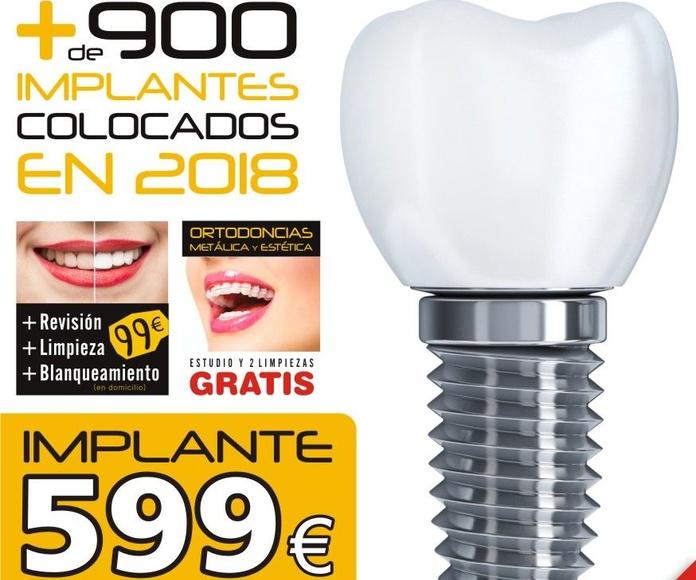 Implantes de carga inmediata: Tratamientos dentales de Centro Especialidades Odontologicas