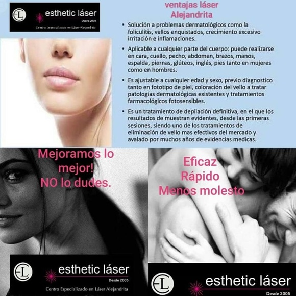 depilación láser / ESTHETIC LÁSER Sagunto