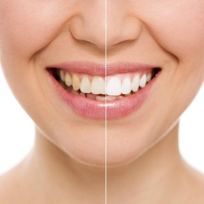 El esmalte en los dientes