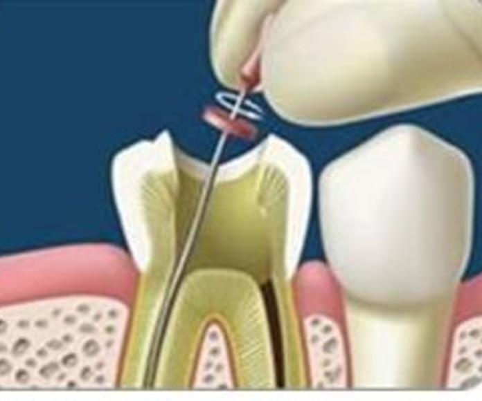 Endodoncias: Tratamientos  de Juan Luis Alonso de Dios